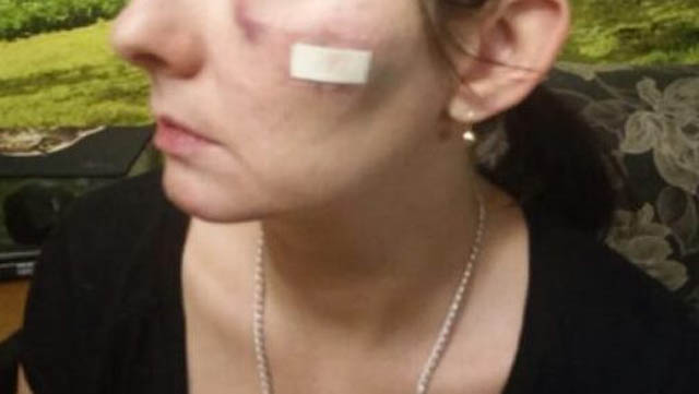 Ударил камнем хозяйку собаки в Бресте пенсионер
