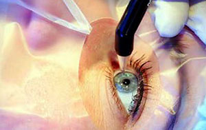 Операция по пересадке роговицы глаза