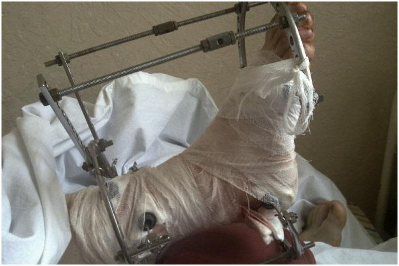 Нога в гипсе. Больница